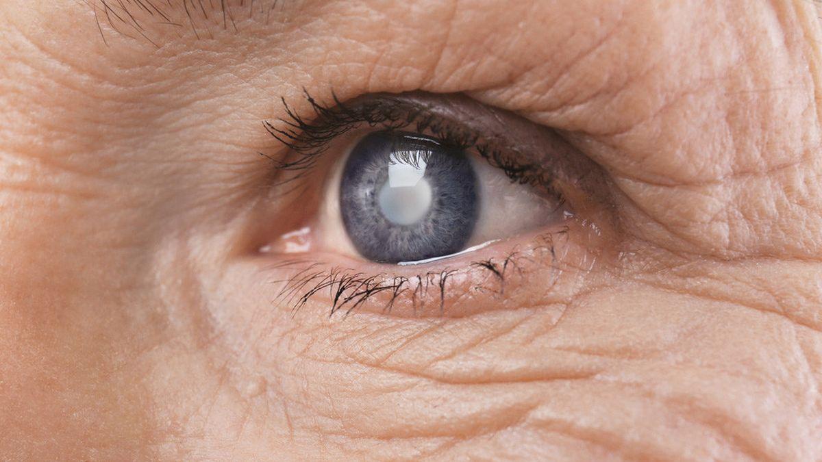 10 penyebab mata katarak